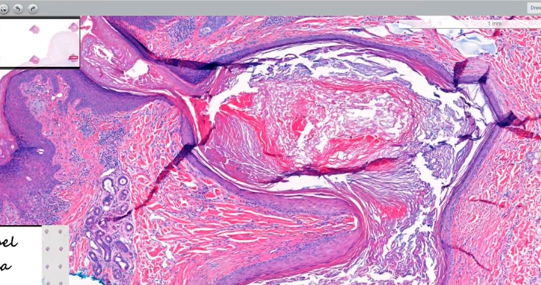 Can You Identify an Epidermal Inclusion Cyst?